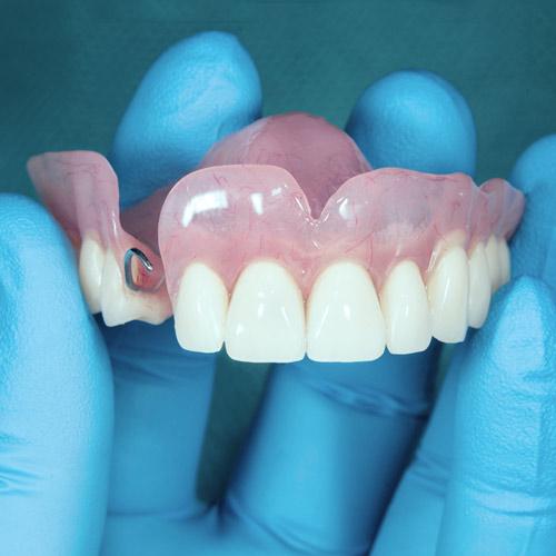 Dentures Bowcutt Dental